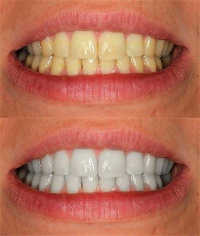 Blanquear dientes con Photoshop
