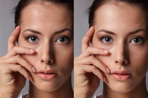 Eliminar imperfecciones (manchas, cicatrices) y suavizar la piel